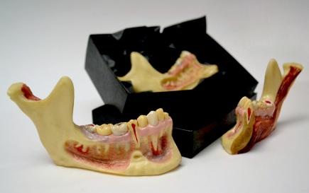 Enfermedades dentales dechocolate